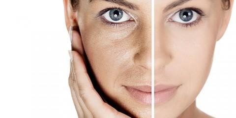 anti-aging-kollagen-elasten